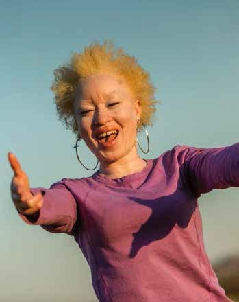 Regina Mary Ndlovu uses acting to educate about albinism.